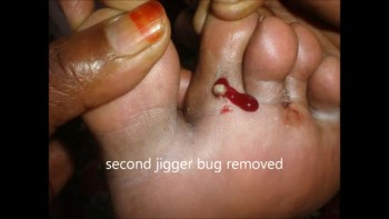 Jigger Bugs in My foot