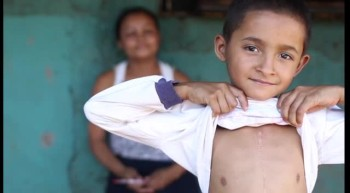 Impoverished Child Was Near Death - Until God Gave Him a New Heart!