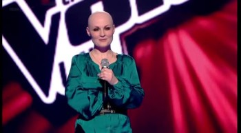 Woman With Rare Hair Loss Disease STUNS Judges With Her Voice