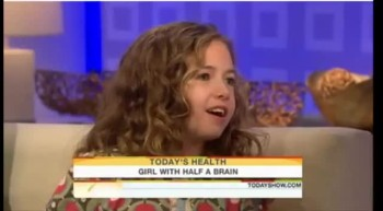 Little Girl Lives With Half Her Brain - Miraculous Story!
