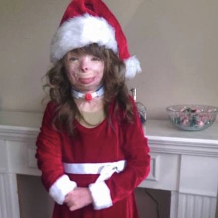A Wish For Christmas.A Horrific Fire Killed Her Entire Family And What This 5