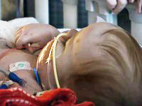 Miracle Baby Gets his Life Saving Heart