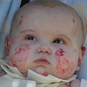 Baby with a Terrible Disease Needs Your Prayers
