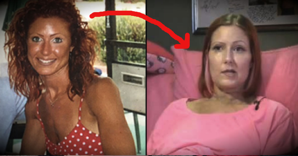 Skin Cancer Patient Ashley Trenner Warns Of The Danger Of Tanning Beds