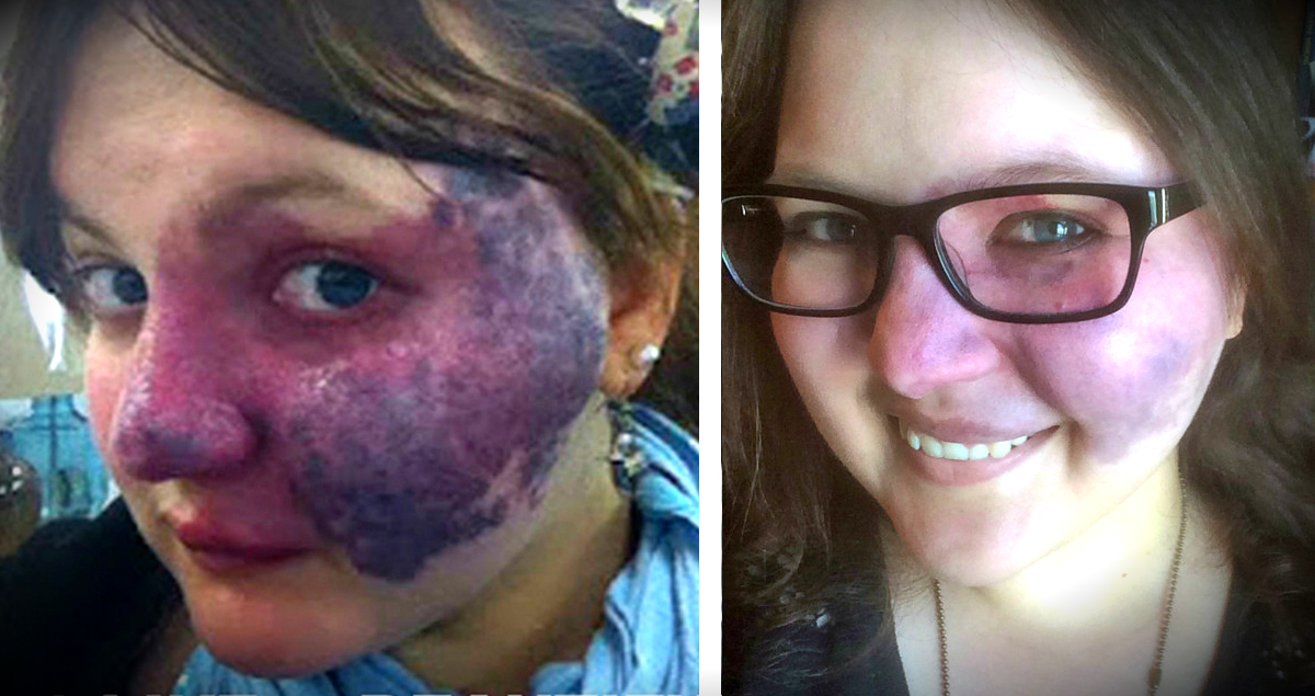 Bullies Made Her Purple Birthmark A Meme But She Did THIS!