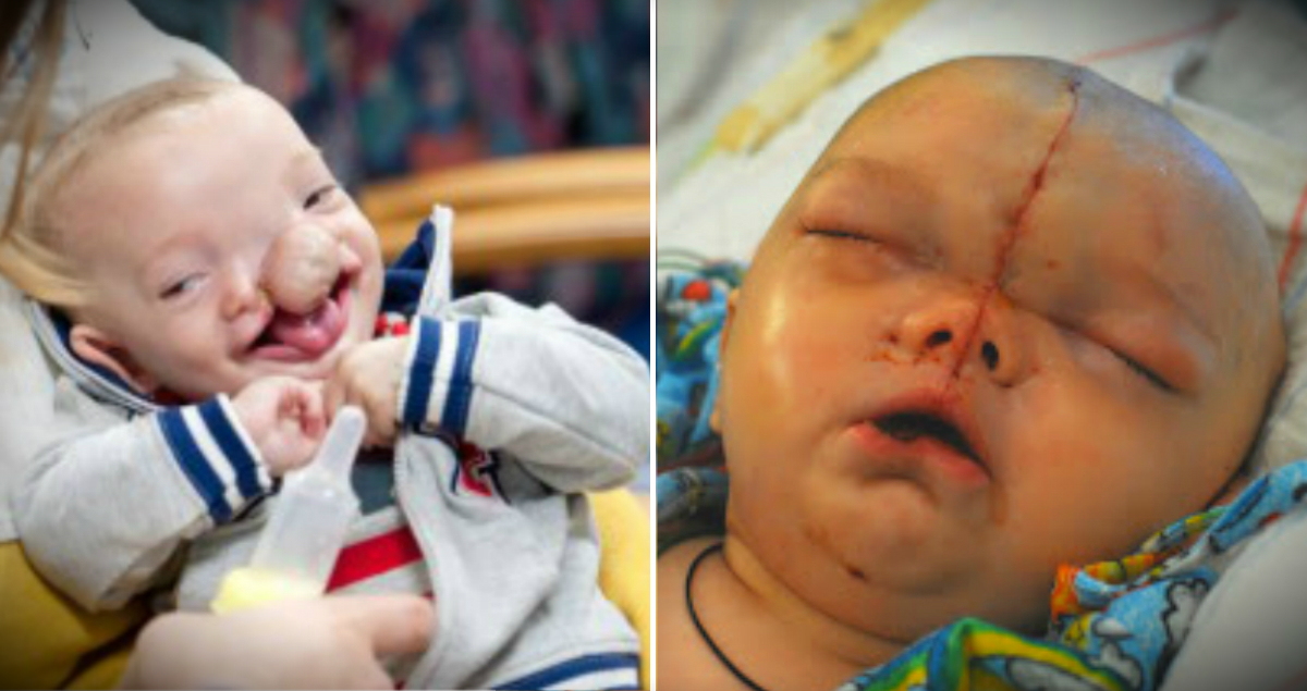Baby Boy With Facial Cleft & Brain Growing Outside Skull Is A Miracle