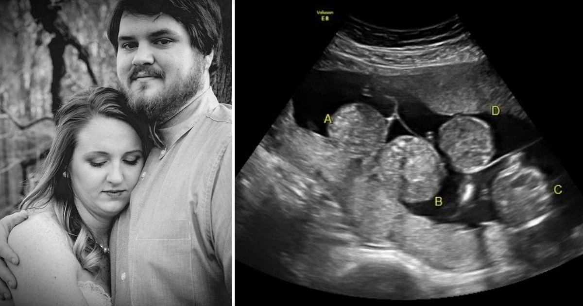 Newlyweds Are Expecting A Rare Set Of Naturally Conceived Quadruplets