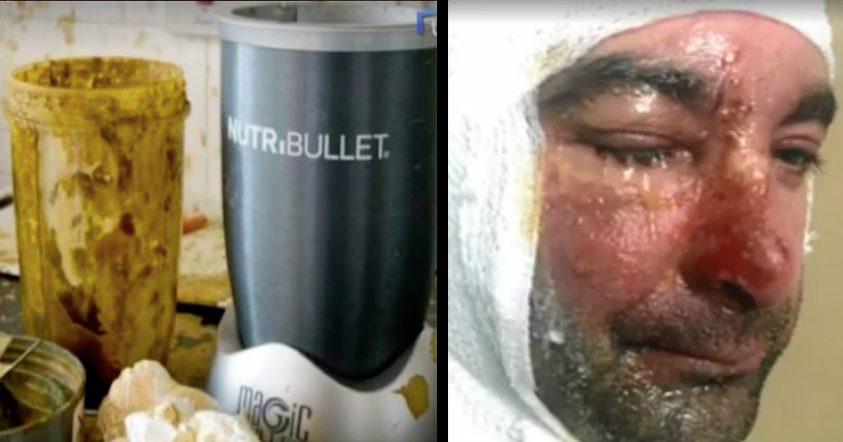 Some Owners Warn Of Exploding NutriBullets Causing Serious Injuries