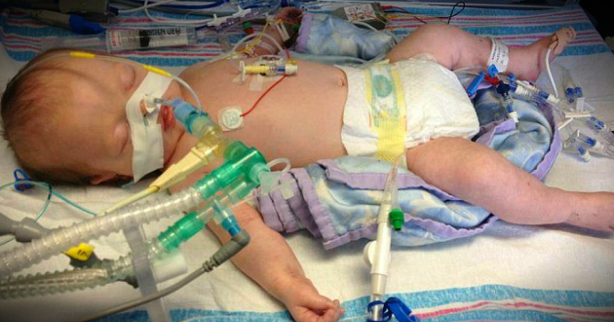 Parents Got A Miracle As Baby Boy's Life Support Was Switched Off